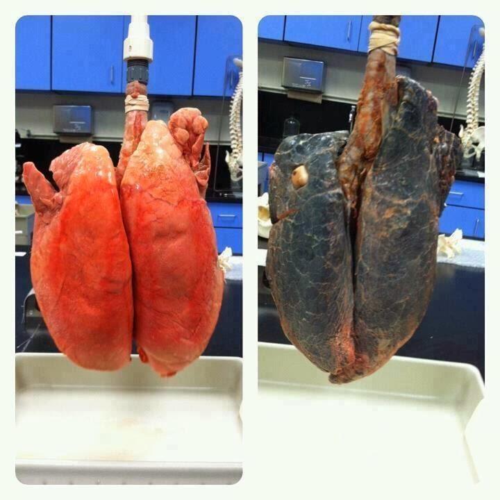 dohányzással összefüggő tüdőbetegség